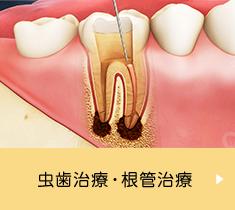 虫歯・根管治療