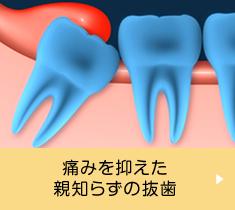 痛みを抑えた親知らずの抜歯