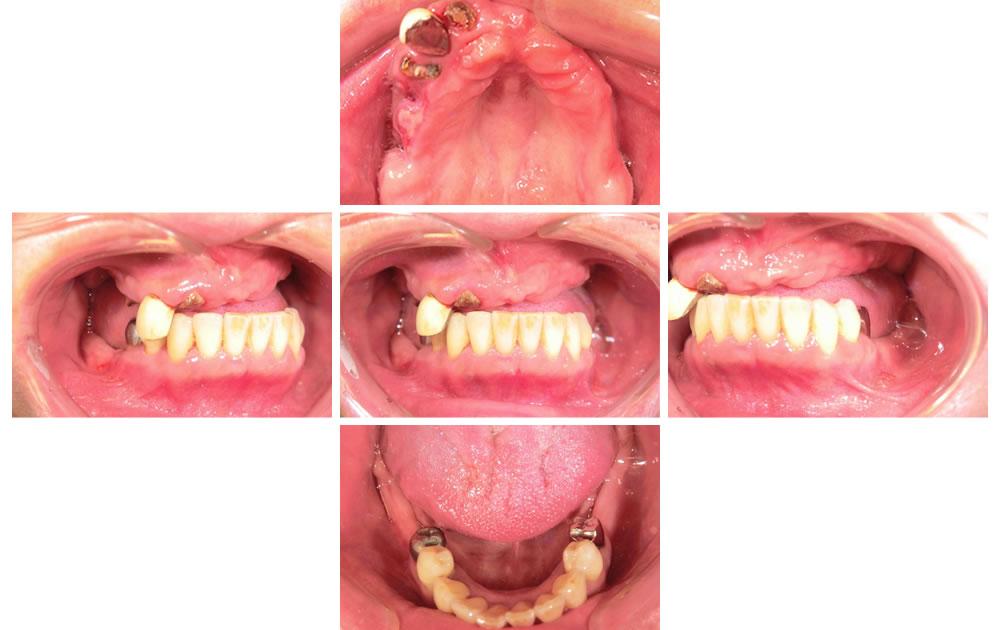 入れ歯治療の症例