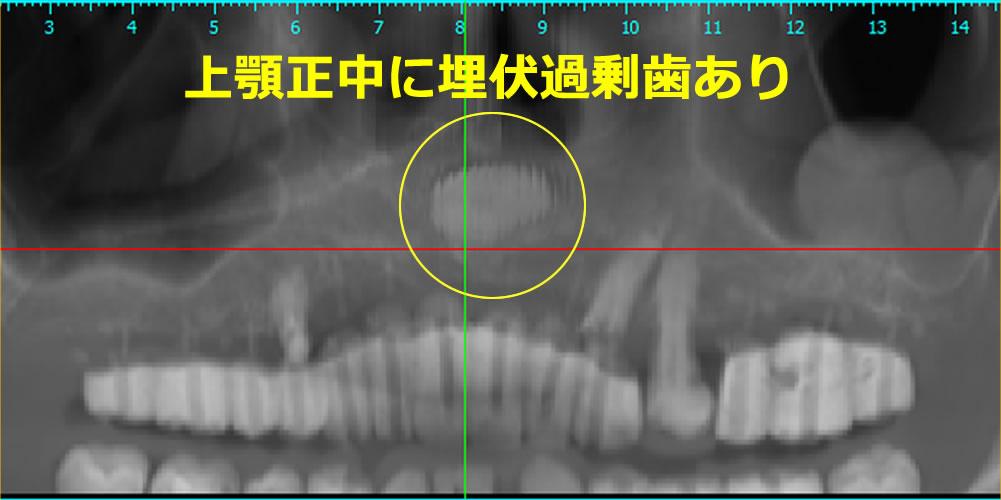 埋伏過剰歯
