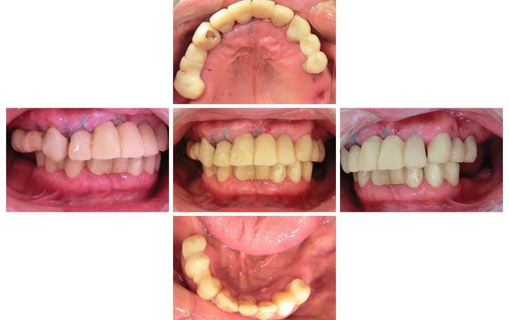 歯周外科治療後の口腔内