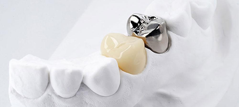 保険で白い歯