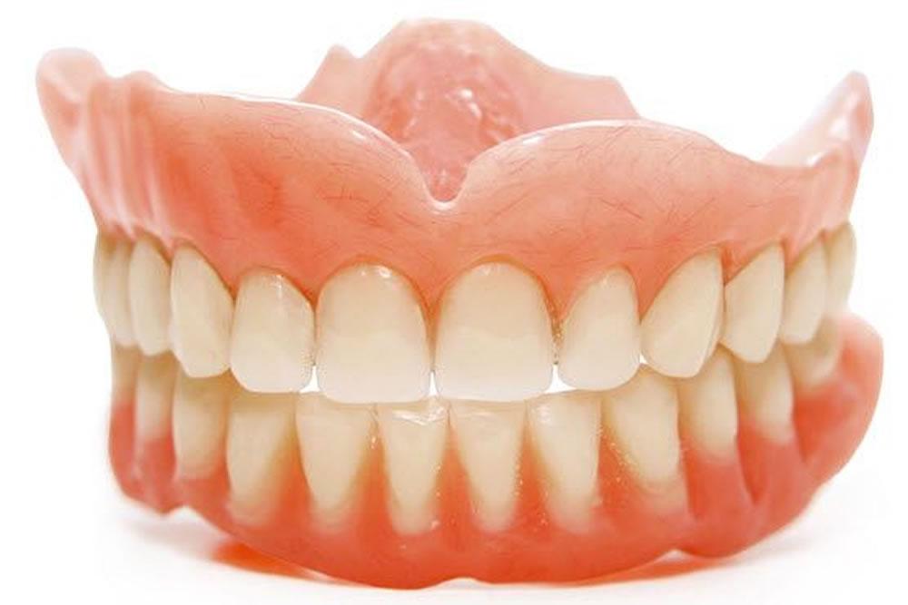 リハビリ義歯