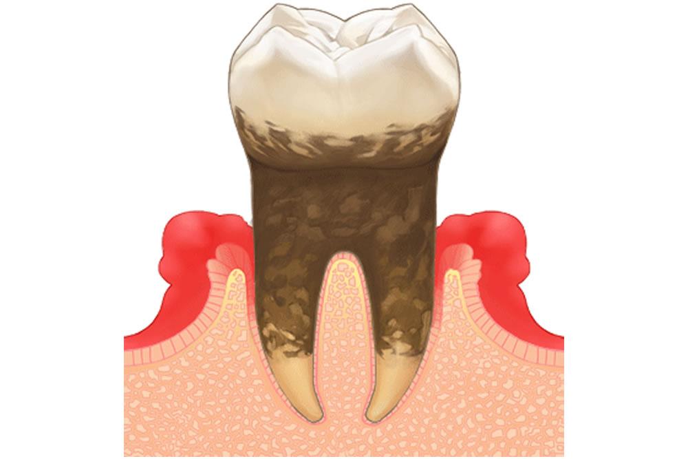 歯の動揺度